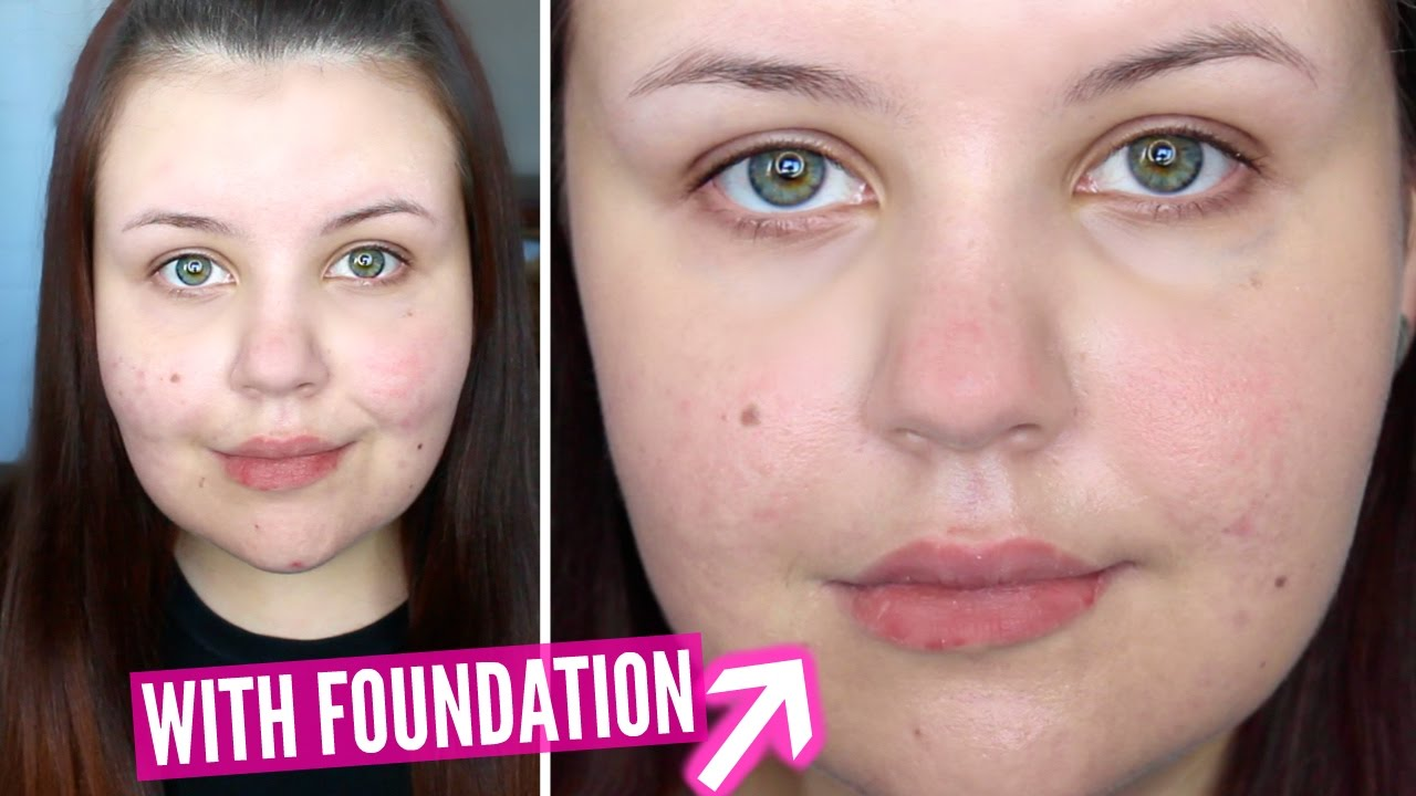 First Impressions Make Up For Ever Water Blend Foundation Acne Scarring You
