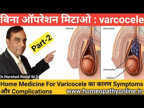 varicocele-का-परमानेंट-इलाज-l-100%-treatment-for-varicocele-l-best-home-treatment-for-varicocele