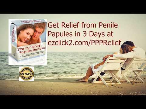 Pearly Penile Papules Removal DIY...