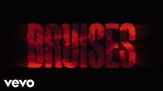 Download Lewis Capaldi - Bruises (Lyric Video) Mp3 and Videos