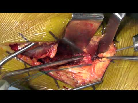 PCL Surgical Video