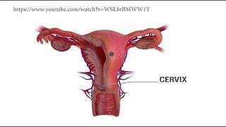 FAQ Kanker Serviks Part 2 sudah tayang :) Pertanyaan yang dibahas, yaitu: -Apa gejala awal dari kank.