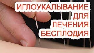 иглоукалывание для лечения бесплодия / Доктор Черепанов