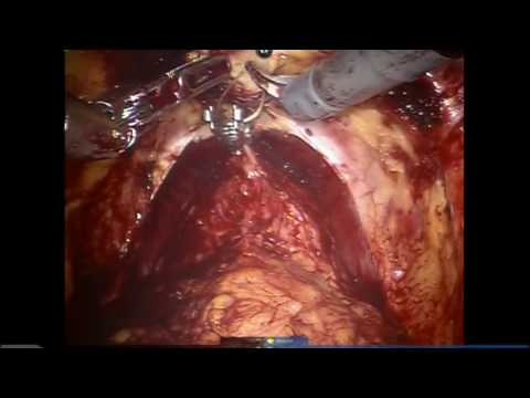 Dr Kaouk Step by step Robotic Radical Prostatectomy
