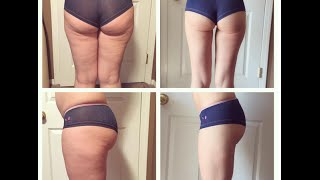 VLOG: My Cellulite is GONE!! Raw Vegan Diet