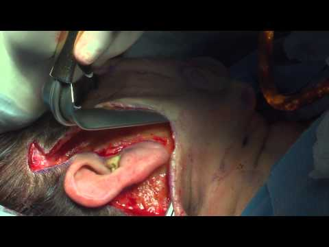 Miami Plastic Surgery - Facelift with Fat Grafting Surgery with Dr. Michael Kelly