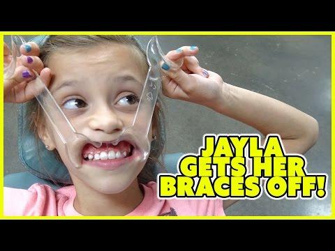 JAYLA GETS HER BRACES REMOVED!!! | FAMILY VLOG | SMELLYBELLYTV