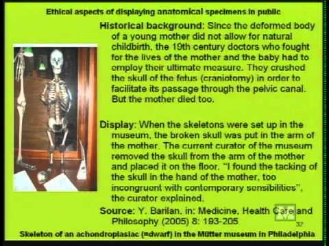 """Beyond """"Body Worlds"""": Ethics and the Public Display of Anatomical Specimens"""