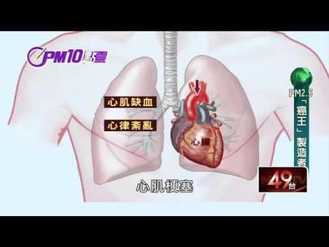 驚!台灣「癌王」肺腺癌 PM2.5是元凶?|PM10點靈|20160331|壹電視新聞