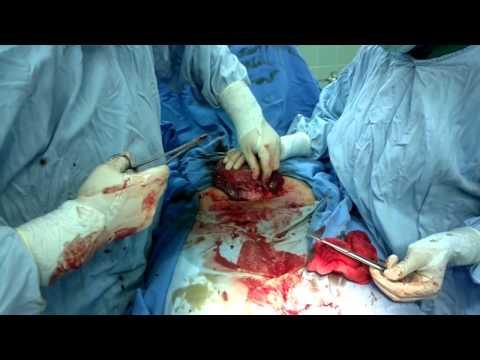 عملية قيصرية Cesarean Section Dr.Hesham Fahed