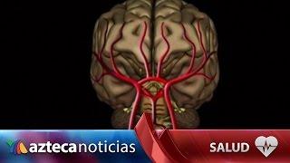 Aire cerebral? de derrame la un ¿Puede causar embolia