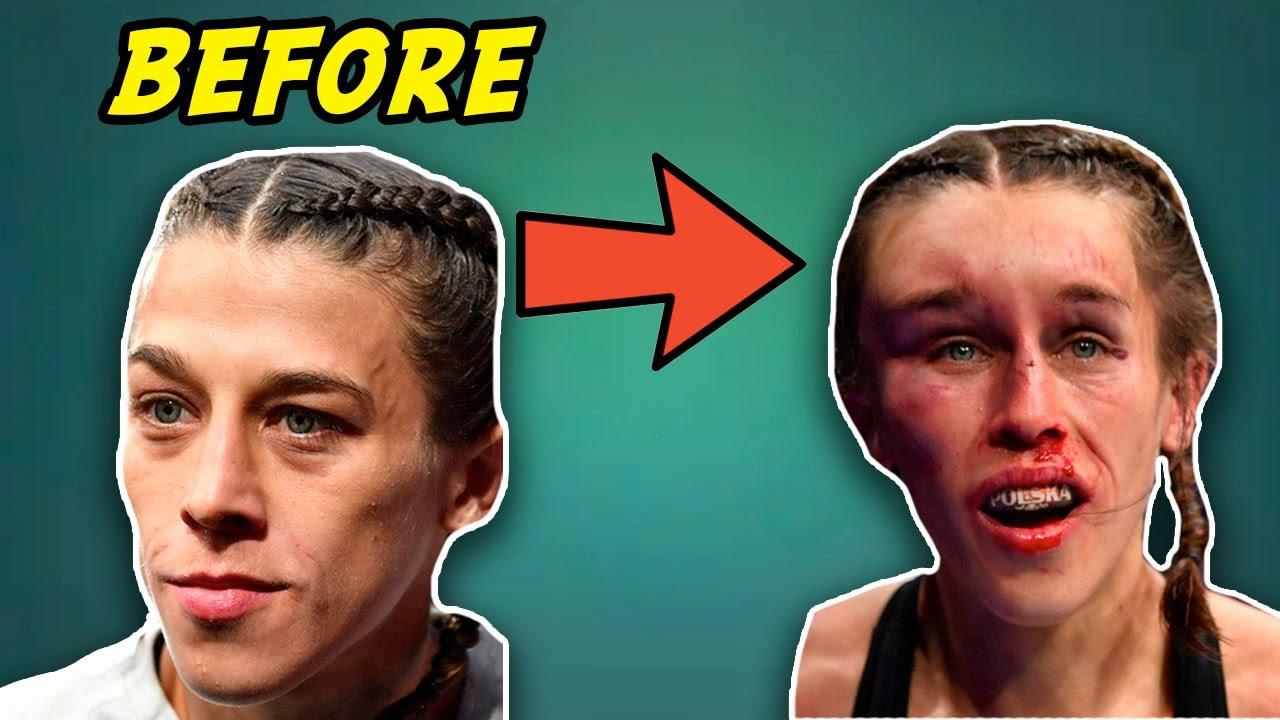 'Thug Rose' wins a bruising UFC war despite a swollen eye and cut ...