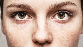 The Truth About Freckles