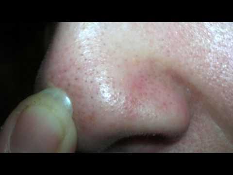 Как очистить лицо от черных точек