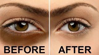 In 7 Days - काले घेरों से कैसे छुटकारा पाएं - Magical Home Remedies To Remove Under Eye Dark Circles