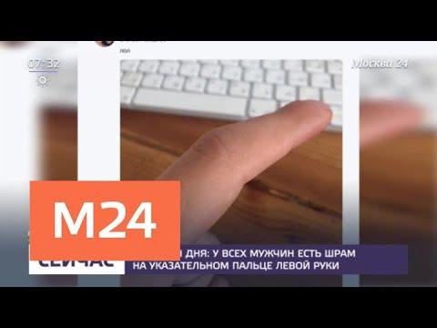 Болит шрам на пальце
