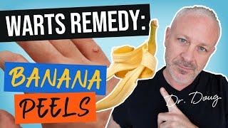 Warts Remedy: Banana Peels!