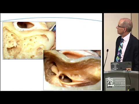 Anatomic Challenges to the Common Approaches for Acoustic Neuroma Surgery - Doug Backous, MD, FACS