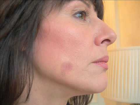 age-spots-removal-totally-at-home-in-14-days