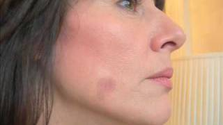 Age Spots Removal Totally at Home in 14 days