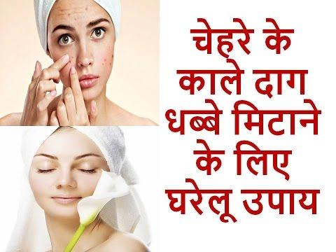 च हर क क ल द ग धब ब म ट न क ल ए घर ल उप य Daag Dhabbe Hatane Ke Gharelu Upay Beauty Tips