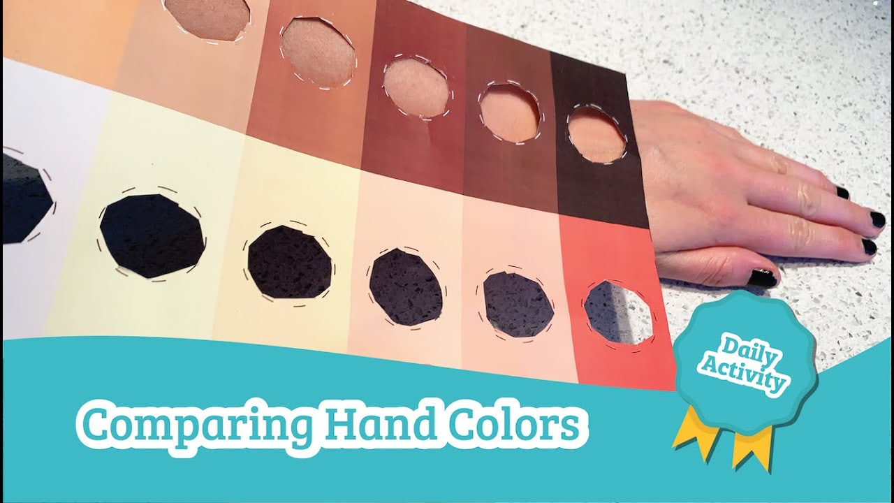 Analyzing Hand Color | Daycare Activities