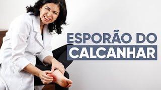ESPORÃO NO CALCANHAR: O que fazer