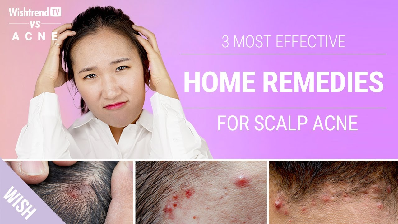 How To Get Rid Of Scalp Back Of Neck Acne Naturally 3 Most Effective Home Remedies Youtube