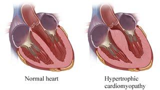 Hypertrophy Cardiomyopathy (Idiopathic Hypertrophic Subaortic Stenosis)