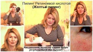 видео Ретиноевый пилинг