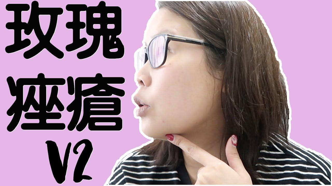 [玫瑰痤瘡V2] 狀況報告+做光學療程之後第一個星期用咩護膚品密集式保養   黑咪 - YouTube