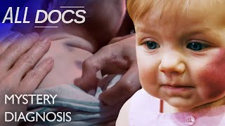 The Baby Who Bruised Easily - Glanzmann