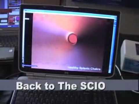 LIFE System Frequencies versus SCIO System Frequencies