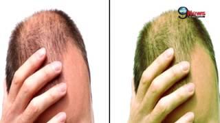 Video 5 दिन का ट्रीटमेंट और उगने लगेंगे नए बाल | Hair Fall: US Scientists Invent Hair Growing Medicine download MP3, 3GP, MP4, WEBM, AVI, FLV Juli 2018