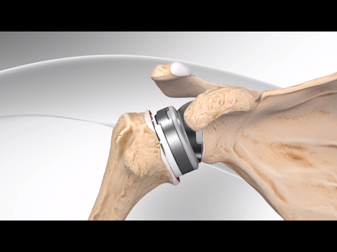Reverse Total Shoulder Replacement with Univers Revers™ System