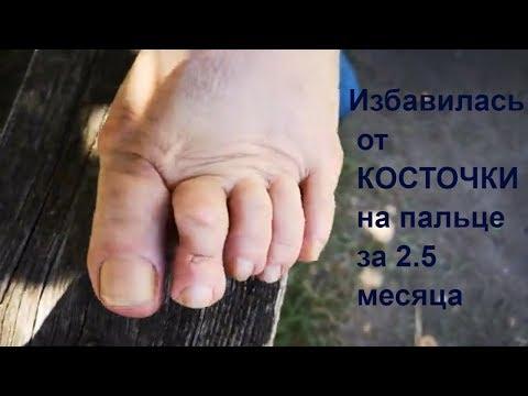 Результат Избавилась от КОСТОЧКИ на большом пальце ноги MatrixOsteo