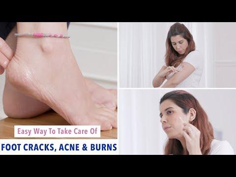 life-hacks-for-cracked-feet,-acne-&-skin-burns-|-glamrs