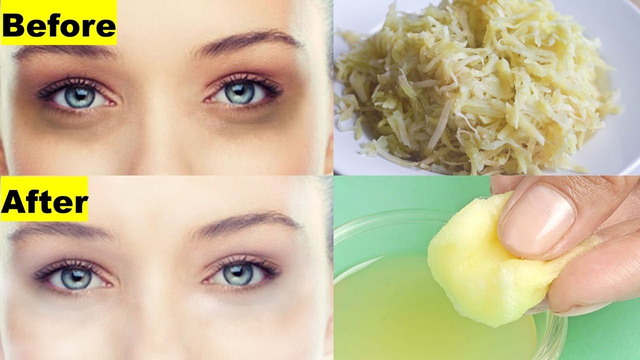 home remedies for dark circles get rid of circles in 30 days at home 5 10341