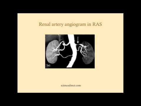 Prerenal Failure - CRASH! Medical Review Series