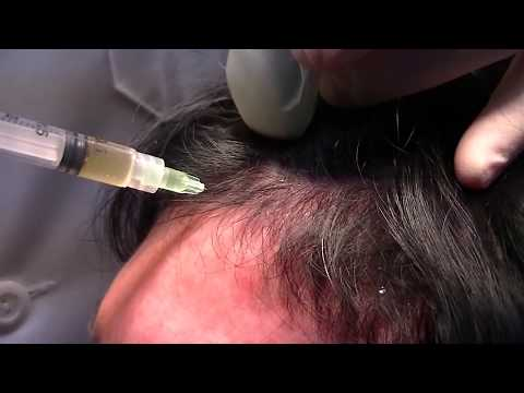 Injecting Platelet rich Plasma PRP for the Treatment of Hair loss