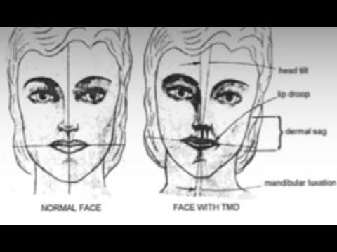 Причины асимметрии лица. Техника для расслабления крыловидной мышцы. Восстановление прикуса