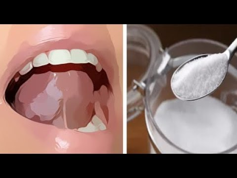 PUT SALT SUGAR MIXTURE UNDER YOUR TONGUE BEFORE YOU GO TO SLEEP ..WHAT H...