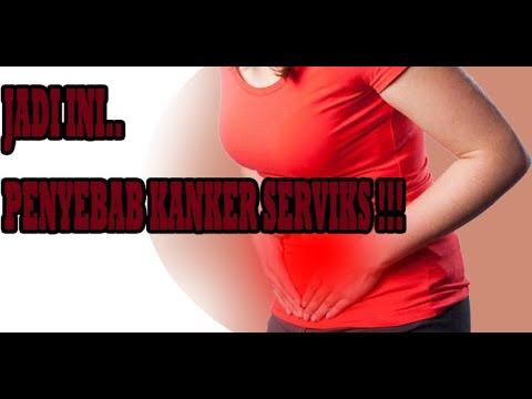 Penyebab Kanker Serviks | Cara Mencegah Kanker Mulut Rahim ...