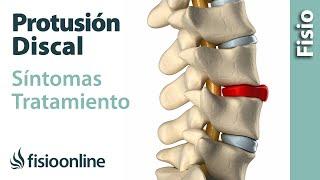 Protrusión de disco o discal - Qué es, causas, síntomas y tratamiento