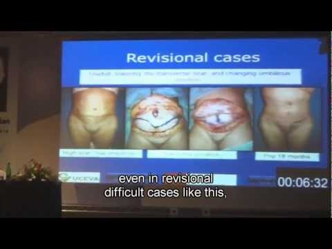 T.U.L.U.A. Transverse plication abdominoplasty IPRAS 2013