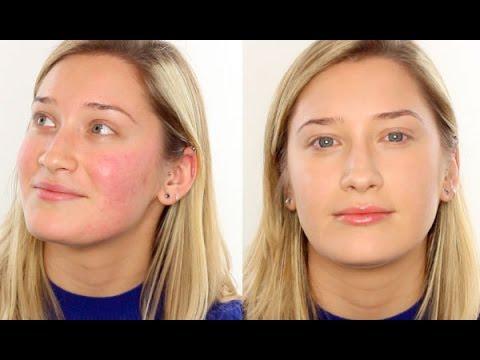 hqdefault - Clinique Redness Solutions Powder Acne