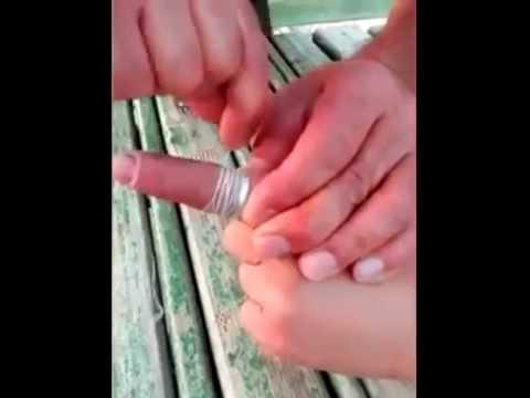Как снять кольцо с пальца