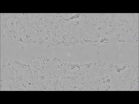 scratch assay nhek neo cytosmart 2