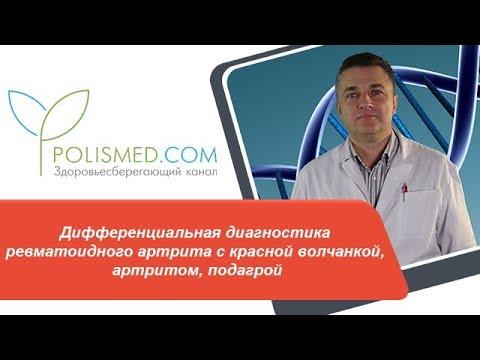 Дифференциальная диагностика ревматоидного артрита с красной волчанкой, артритом, подагрой
