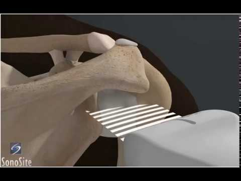 3D How To: Ultrasound Exam of the Gleno-Humeral Joint - SonoSite Ultrasound thumbnail